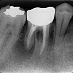 歯内療法専門医としての出張診療