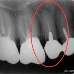 失活歯のクラウンを外してみると・・・。