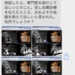 いきなりCTは要らないですよ〜!